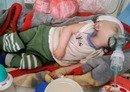 Des agences préviennent que la situation s'aggrave au Yémen